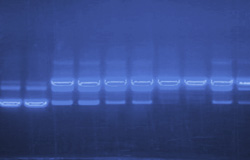 DNA Gel in UV Light